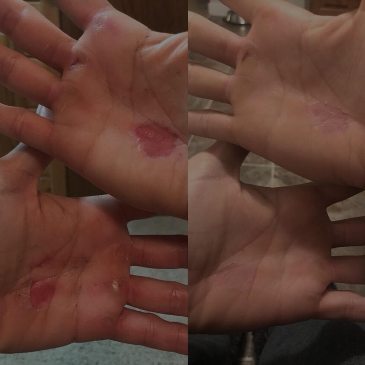 Releaf Hand Rescue